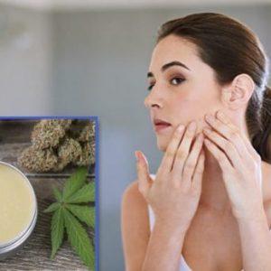 CBD acne cream DIY recipe