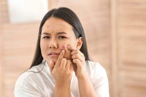 acne-prone-face